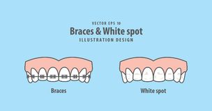 Braces & White spot illustration vector on blue background. Dent. Braces & White spot illustration vector on blue background. Dental concept Royalty Free Stock Image