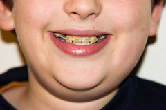 Braces and white teeth of smiling boy medical care Stock Image