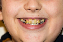 Braces and white teeth of smiling boy medical care Royalty Free Stock Photography
