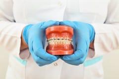 bracesmodell Arkivfoto