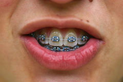 Brackets. Teen woman smiling Royalty Free Stock Images