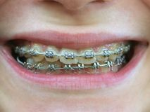 Brackets on teeth. Smile with braces on teeth royalty free stock photo