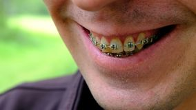 Brackets for yellowed teeth. Close-up of a smiling guy. The teeth of a smoking person. Shallow depth of field. Dental
