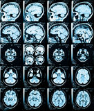 Brain. Health medical image of an MRI / MRA (Magnetic Resonance Angiogram)  of the head showing the brain Stock Photo