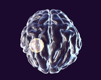 Brain abscess caused by parasite Toxoplasma gondii Royalty Free Stock Images