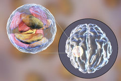 Brain abscess caused by parasitic protozoan Toxoplasma gondii Stock Photo