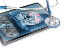Brain activity scan. Modern medical tablet displaying scan of cerebral activity Royalty Free Stock Photography