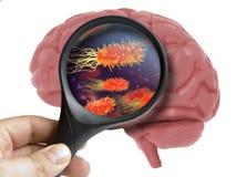 Brain Analyzed humano com o micróbio bacteriano de ampliação do vírus dentro do isolado foto de stock royalty free