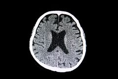 Free Brain Atrophy Stock Photo - 129019570
