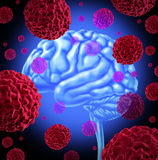 Brain Cancer. Human brain cancer with cells spreading and growing as malignant cells in a human caused by environmental carcinogens and genetic causes as Stock Images