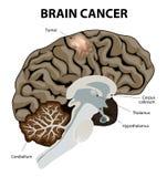 Brain Cancer vektor illustrationer