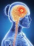 Brain cancer. 3d rendered illustration -  brain cancer Stock Image