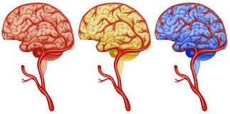 Brain cancer on white background. Illustration Stock Photography