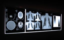 Brain and Chest X-ray on a Light Board. X ray film of a head and chest displayed on a light board Stock Images
