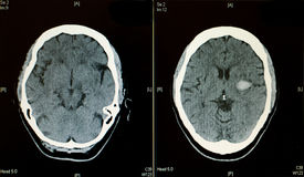Brain CT scan showing bleeding stroke Stock Images