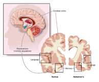 Brain damage in Alzheimer's. Drawing of the brain, showing the hippocampus and areas of brain involvement in Alzheimer's disease Stock Photos