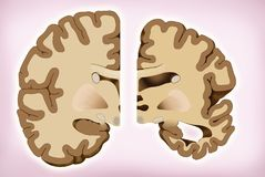 Brain difference in Alzheimer`s. Brain difference in Alzheimer`s, This illustration shows the comparison of two halves of the brain, a healthy half and another vector illustration