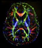 Brain diffusion tensor imaging Stock Image