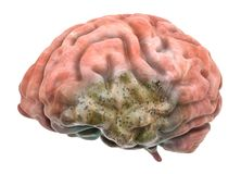 Brain Disease Concept rendu 3d illustration stock