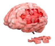Brain disease or destruction concept. 3D. Rendering royalty free illustration