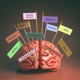 Brain Diseases Royalty Free Stock Photo