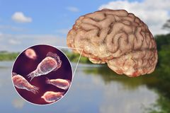Brain-eating amoeba infection, naegleriasis. Trophozoite form of the parasite Naegleria fowleri and brain encephalitis caused by amoeba, 3D illustration royalty free stock photos