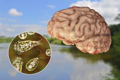 Brain-eating amoeba infection, naegleriasis. Trophozoite form of the parasite Naegleria fowleri and brain encephalitis caused by amoeba, 3D illustration stock image