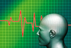 Brain electric activity Stock Image