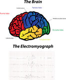 Brain and Electromyograph Stock Photos