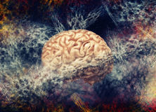 Brain Fog Fotografia Stock Libera da Diritti