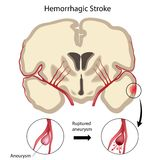Brain hemorrhagic stroke. Brain stroke due to bleeding caused by rupture of cerebral aneurysm, eps10 Stock Photography