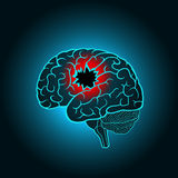 A brain with a hole, the concept of destruction of the brain, memory, stroke Royalty Free Stock Photography