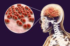 Brain infection caused by Streptococcus pneumoniae bacteria. Medical concept, 3D illustration Stock Photography