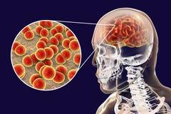 Brain infection with Neisseria meningitidis bacteria. 3D illustration. Gram-negative diplococci that cause meningitis and encephalitis Royalty Free Stock Images