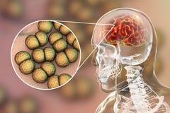 Brain infection with Neisseria meningitidis bacteria. 3D illustration. Gram-negative diplococci that cause meningitis and encephalitis Stock Photography