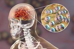 Brain infection with Neisseria meningitidis bacteria. 3D illustration. Gram-negative diplococci that cause meningitis and encephalitis Stock Photo