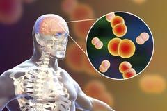 Brain infection with Neisseria meningitidis bacteria. 3D illustration. Gram-negative diplococci that cause meningitis and encephalitis Royalty Free Stock Photo