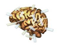 Brain Injury e reparo ilustração royalty free