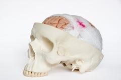 Brain injury model oblique view on the white background. Guaze wrapping around brain model demonstring brain injury on the white background stock photos
