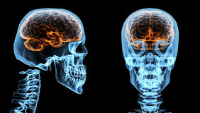 Brain inside skull Stock Photos