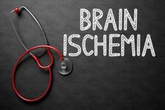 Brain Ischemia Handwritten sulla lavagna illustrazione 3D Fotografie Stock