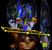 Brain, diffusion tensor MR imaging royalty free stock images