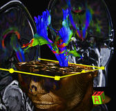 Brain diffusion tensor MR imaging Stock Photography
