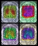 Brain MR spectroscopy Royalty Free Stock Photography