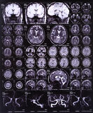 Brain MRI. And MR angiography of cerebral arteries Royalty Free Stock Image