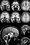 Brain MRI Royalty Free Stock Images