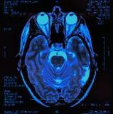Brain MRI. Magnetic resonance image (MRI) of the brain Stock Photos