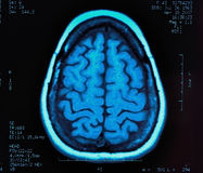 Brain MRI Royalty Free Stock Image