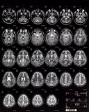 Brain MRI children 10 years Royalty Free Stock Photo