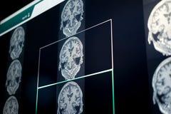 Brain MRI for education royalty free stock photo